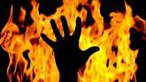 Pakistan: Transgender set on fire for resisting sexual assault