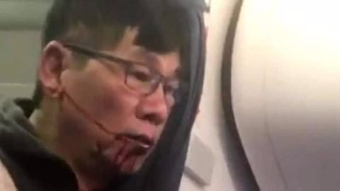 United passenger says flight ordeal worse than Vietnam War experience