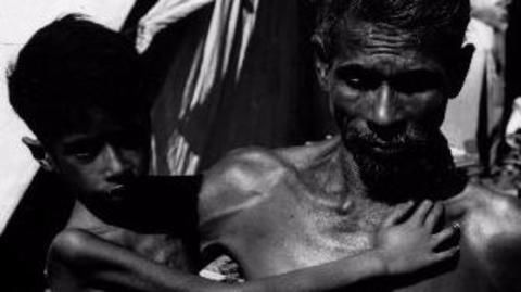 Malnutrition complicating India's severe  tuberculosis problem