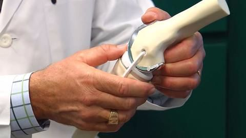 Government cuts prices of knee implants by up to 70%