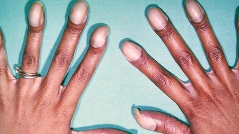 in relief for 70mn people india gets rare diseases registry