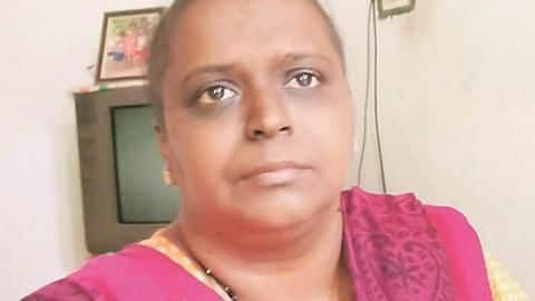 "Kerala: Woman misdiagnosed with cancer, still hasn't ""recovered"" from chemotherapy"