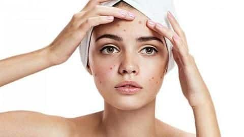 #HealthBytes: Five effective ways to fight acne in summer