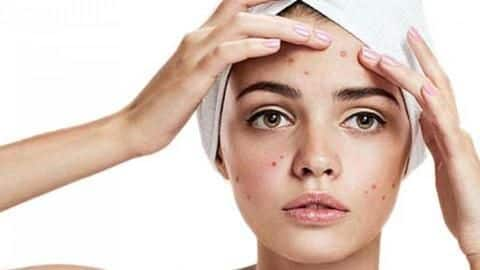 #HealthBytes: Five ways to fight acne in summer
