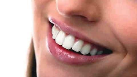 Five tips to get naturally shiny and strong teeth