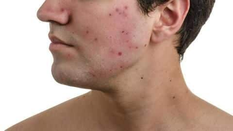 Acne In Men Causes Treatment And Home Remedies