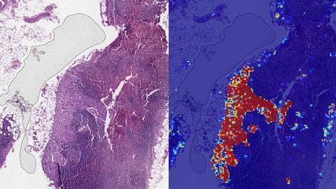 Google's AI can spot breast cancer better than humans
