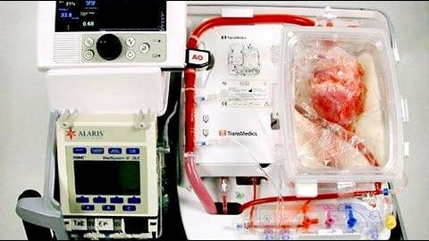 """New method keeps hearts """"alive"""" for 12 hours outside body"""