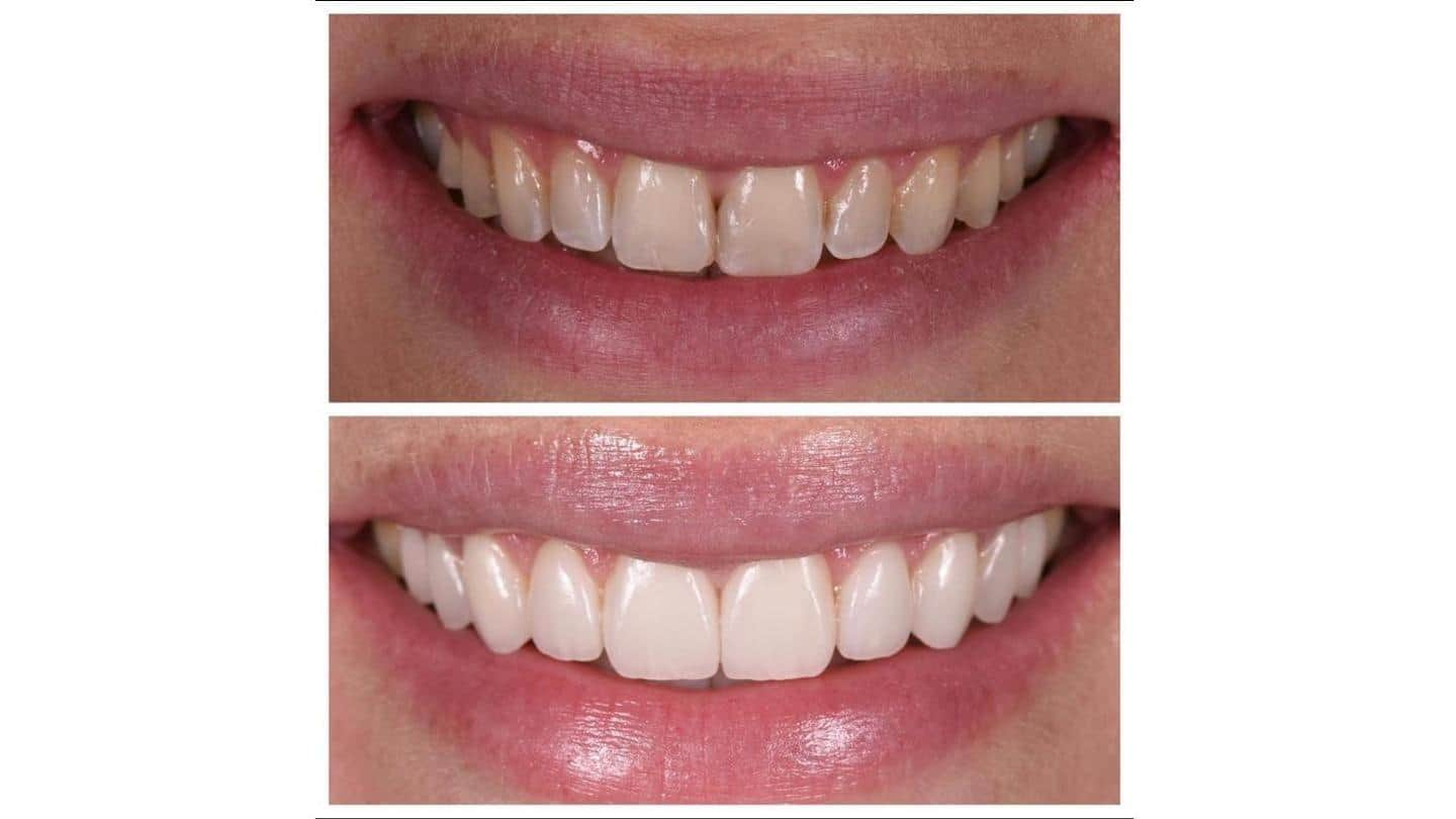US: Top 8 cosmetic dentists, surgeons to achieve perfect smile