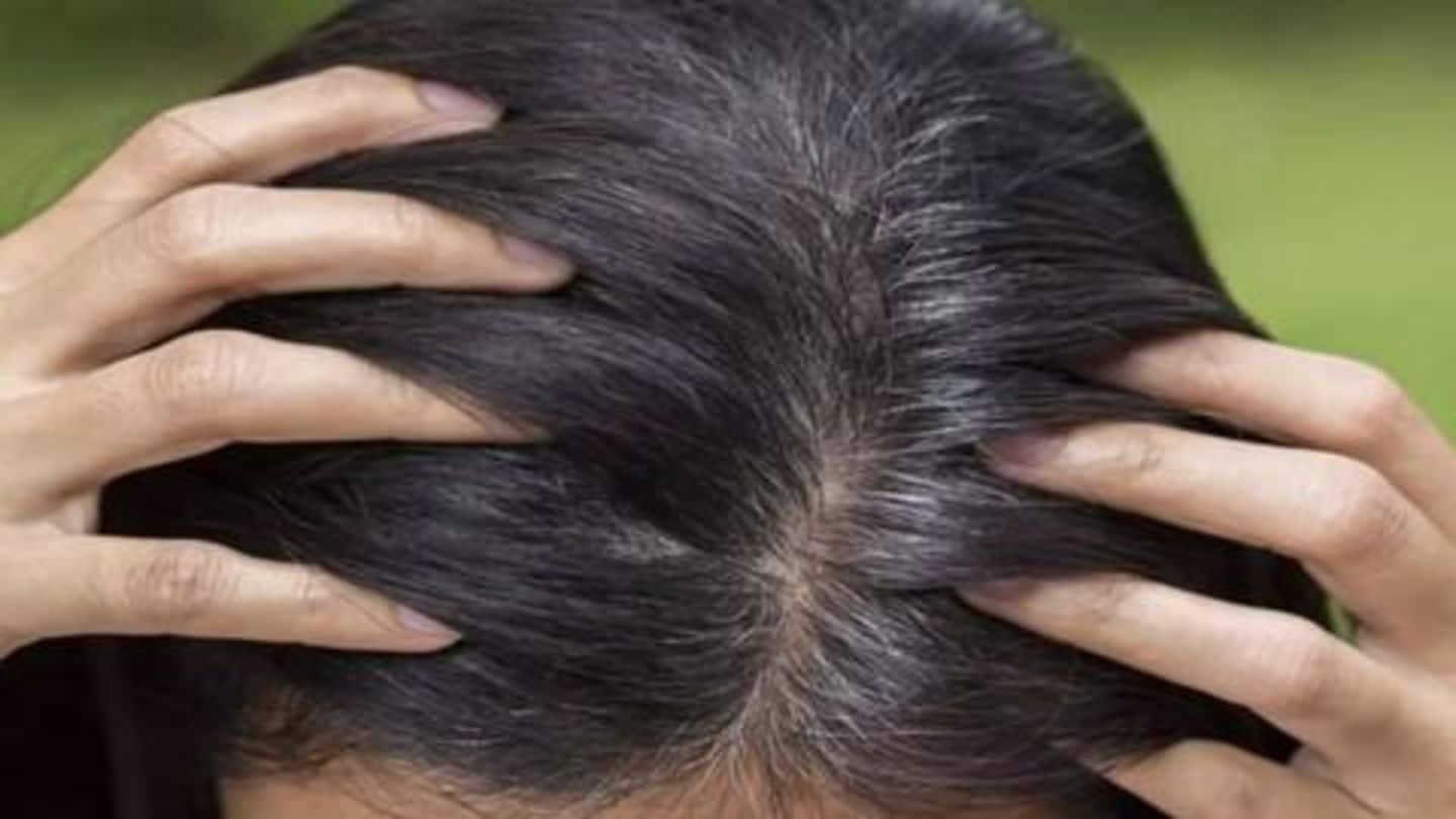 Hair turning grey? Try these five natural home remedies