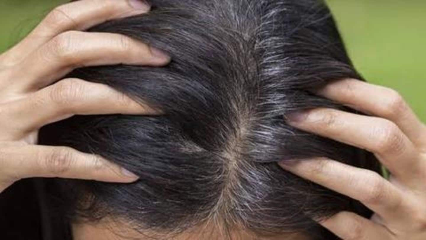 Struggling with grey hair? Here's how Ayurveda can help