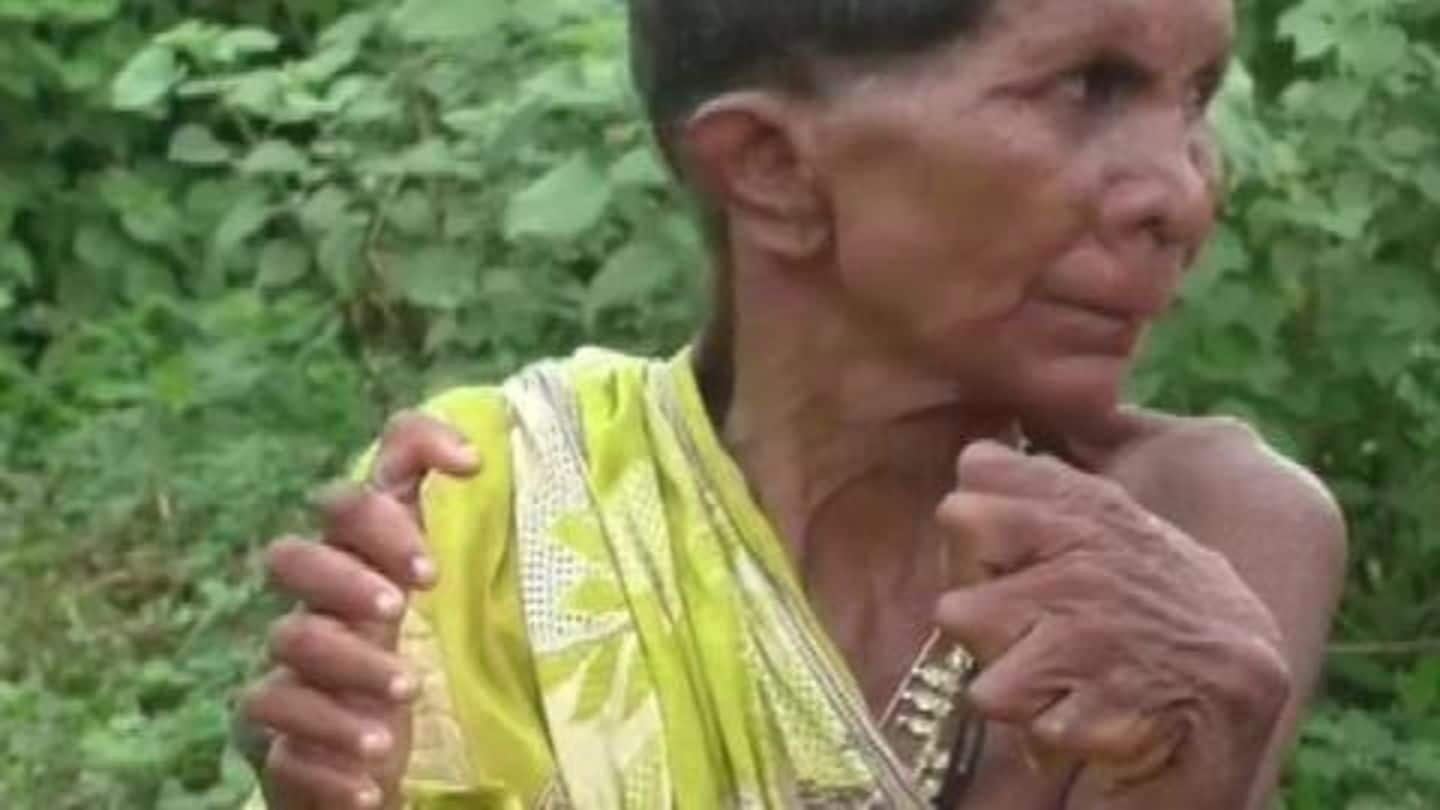 Odisha woman branded 'witch' for having 12 fingers, 20 toes