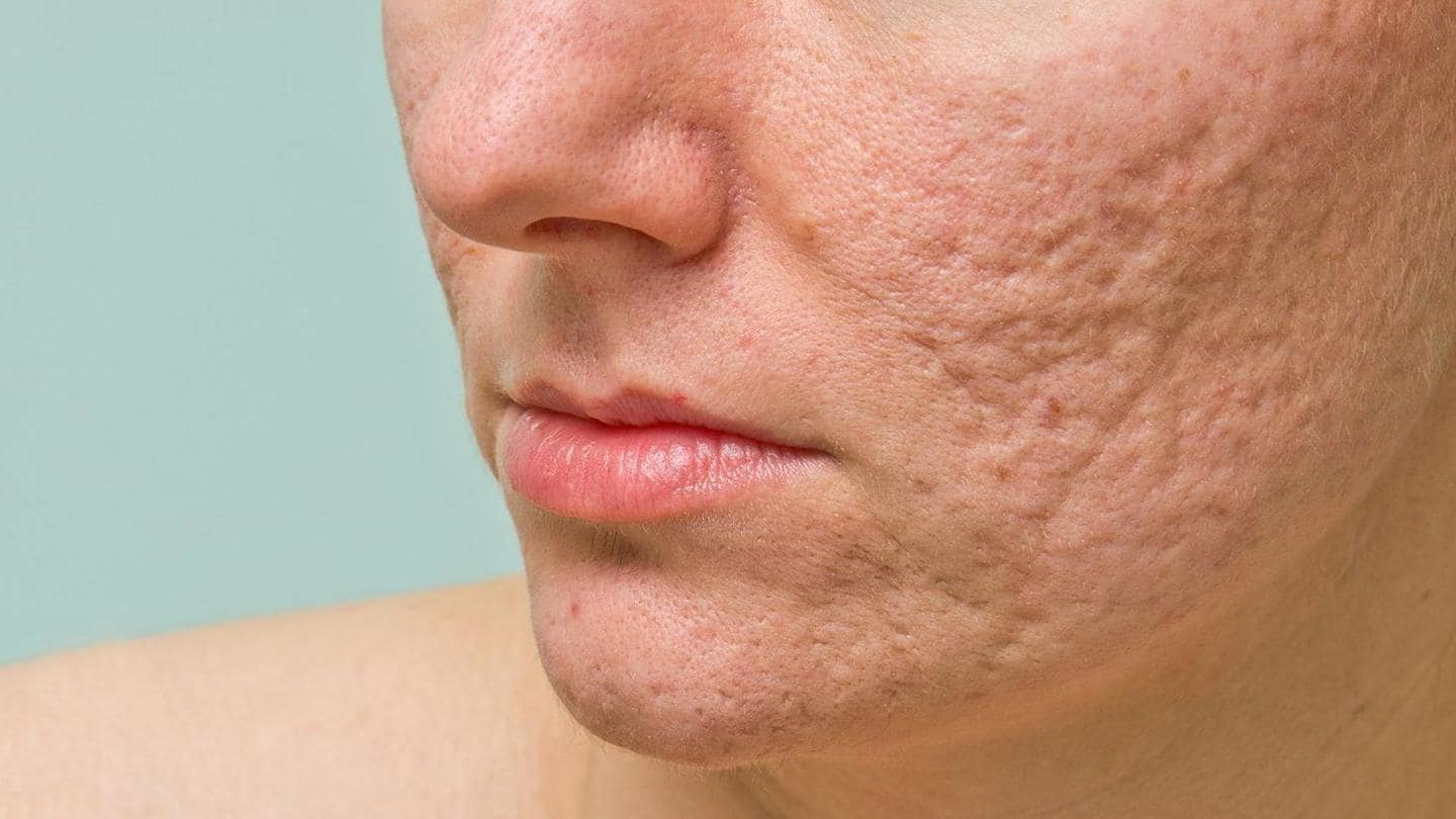 #HealthBytes: Home remedies that can lighten stubborn acne scars